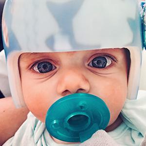 orthotics pediatrics helmets