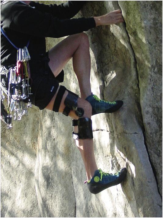 Orthotics lower extremity